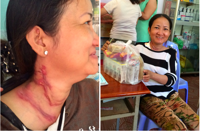 38 year old patient attends the clinic for medication for a neck tumour